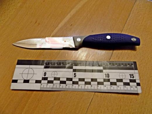 Бійка молодиків на Закарпатті закінчилася ножовим пораненням