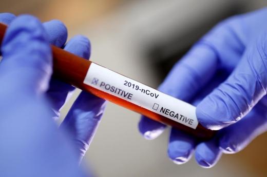 Лабораторія ЦГЗ не знайшла коронавірусу в жодному з 20 досліджених зразків - МОЗ