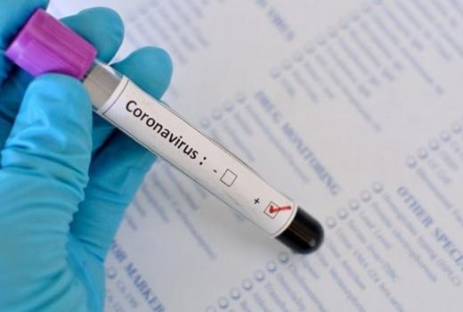 За останню добу в Україні 12 повідомлень про підозру на коронавірус