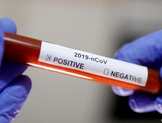 Закарпаття отримало понад 5 тисяч тестів на коронавірус