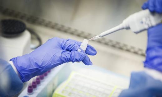 За останню добу в Україні підтверджено 418 випадків COVID-19, загалом хворих 12331