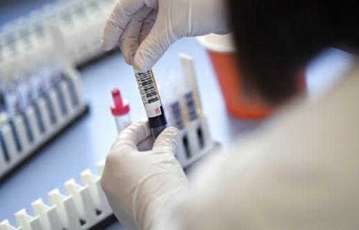 В Україні зафіксовано понад 20 тисяч випадків COVID-19