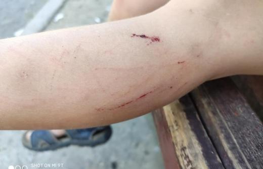 Хлопчик провалився в яму у центрі Ужгорода