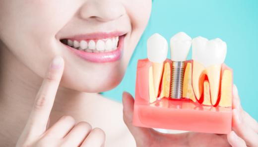 Що треба знати про зубні імпланти: корисні поради від ужгородського лікаря