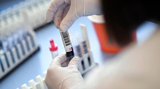 В Ужгороді за добу зафіксували 30 нових випадків коронавірусу