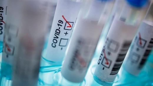 В Ужгороді виявили 26 нових випадків коронавірусу