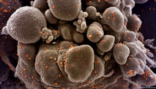 Закарпатські лікарі виявили у пацієнтів нехарактерні симптоми коронавірусу