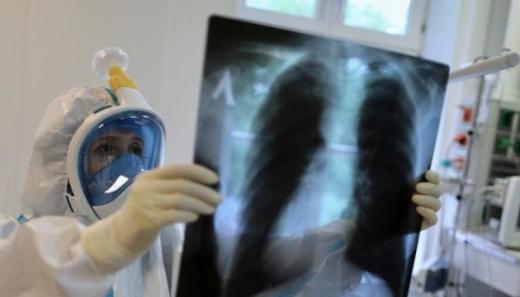 В Ужгороді за добу виявили 14 нових випадків коронавірусної інфекції
