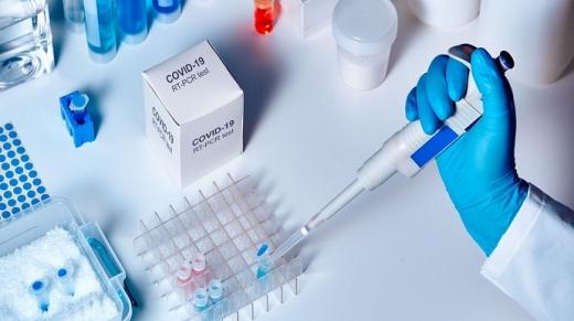 4 випадки коронавірусу зафіксували в Ужгороді за добу