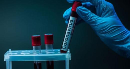 За минулу добу в Ужгороді виявили 5 нових випадків коронавірусу